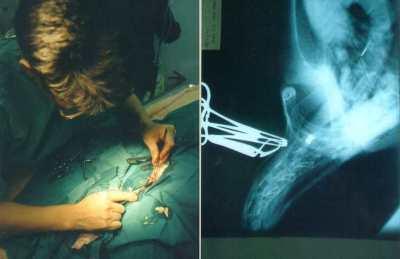 A Shot Injury